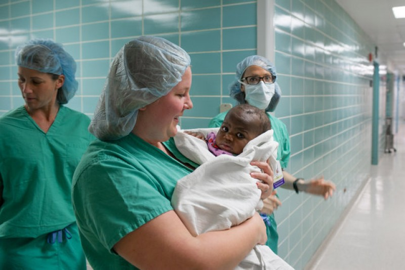 Girl born with four legs is separated from parasitic twin in Chicago surgery